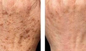 leczenie skóry