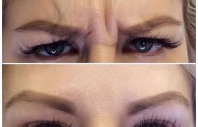 Botox – usuwanie zmarszczek mimicznych