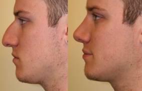 Niechirugiczna korekta nosa