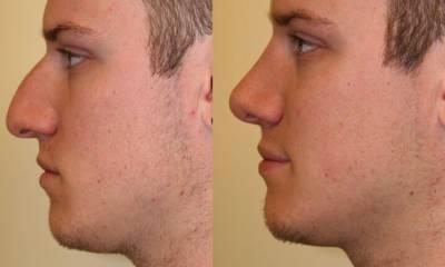 niechirurgiczna korekcja nosa