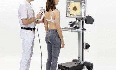 videodermatoskop