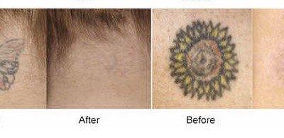 usuwanie tatuażu laserem