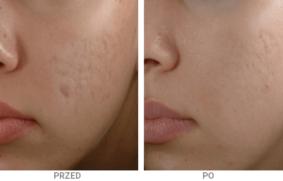 Dermapen 4 – Mikronakłuwanie skóry, Mezoterapia Wrocław